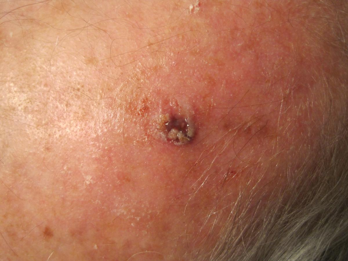 actinic keratosis natural treatment march