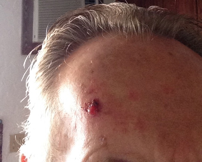 mike daugherty basal cell carcinoma before