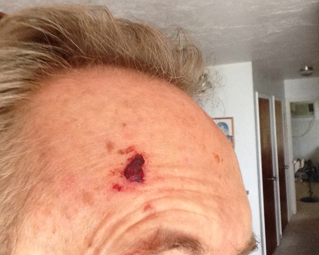 mike daugherty basal cell carcinoma #2