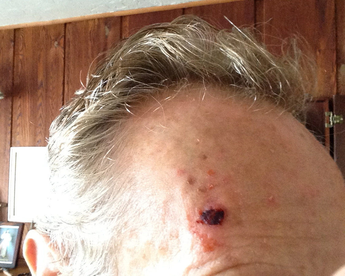 mike daugherty basal cell carcinoma #3