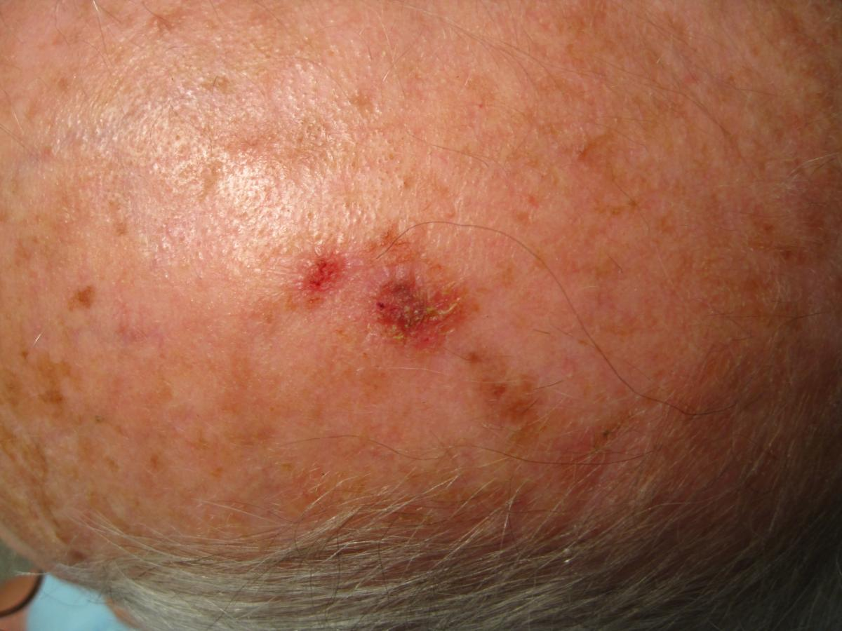 actinic keratosis natural treatment may