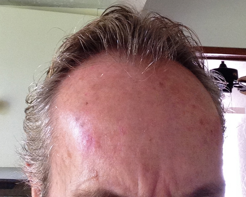 skin lesion on forehead completely healed