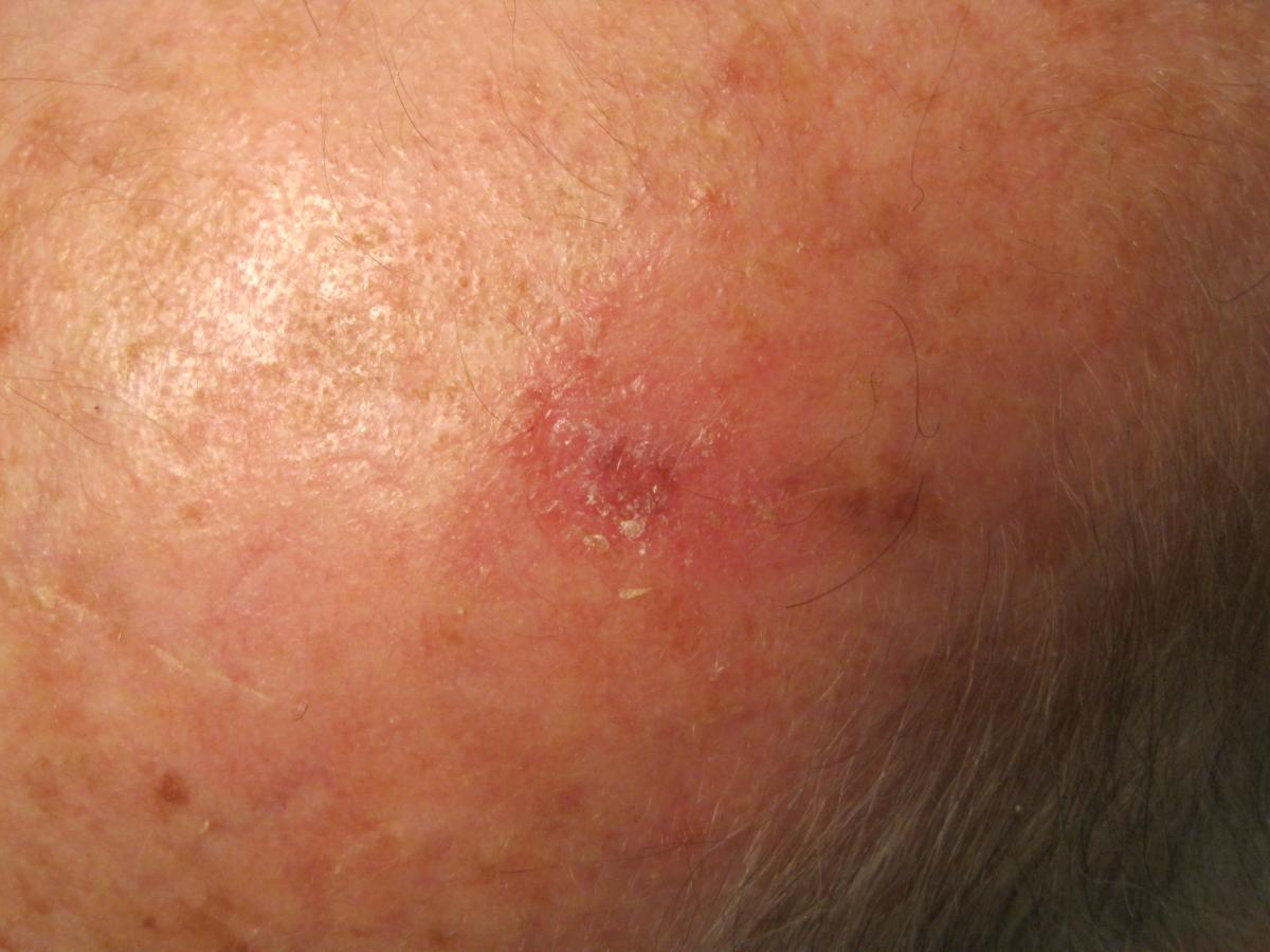 abnormal growth on scalp