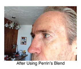 basal cell carconoma after Perrin's Blend natural treatment