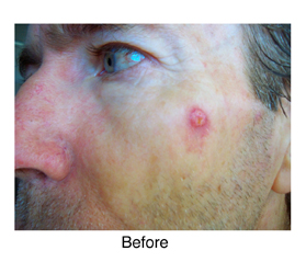 basal cell carconoma before Perrin's Blend natural treatment
