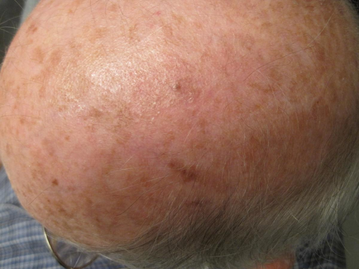 completely healed scalp