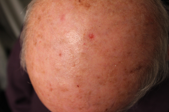 removing squamous cell carcinoma with perrin's blend 4