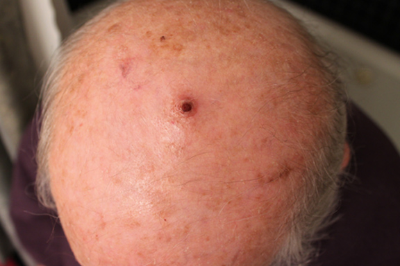 removing squamous cell carcinoma with perrin's blend 2