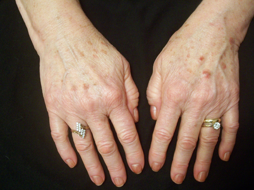 Remove liver spots naturally. Picture of age spots. Perrin Naturals.