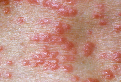pictures of Scabies from WebMD.jpg