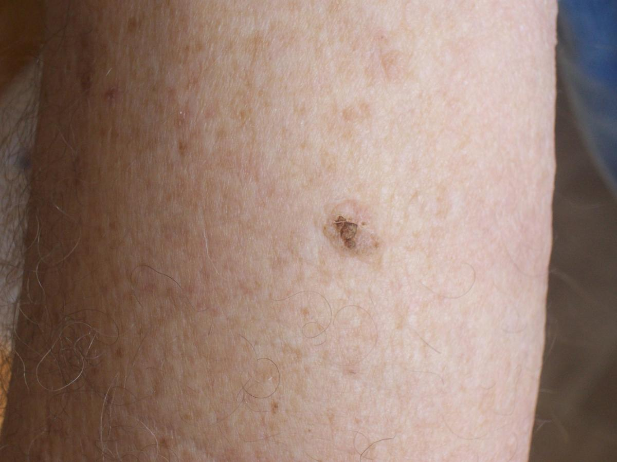 Bob Barron 2nd Picture basal cell carcinoma