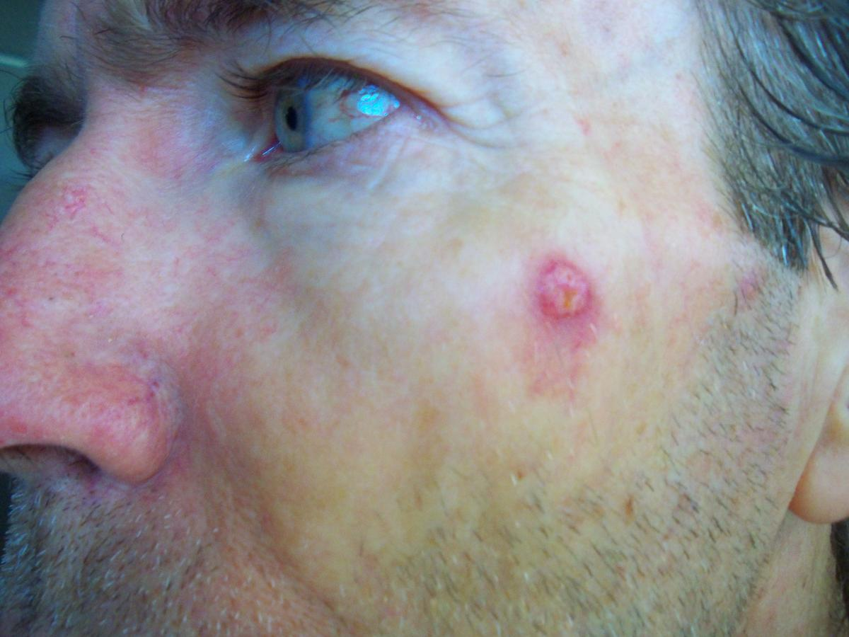Michael Daughtery Basal Cell Carcinoma before