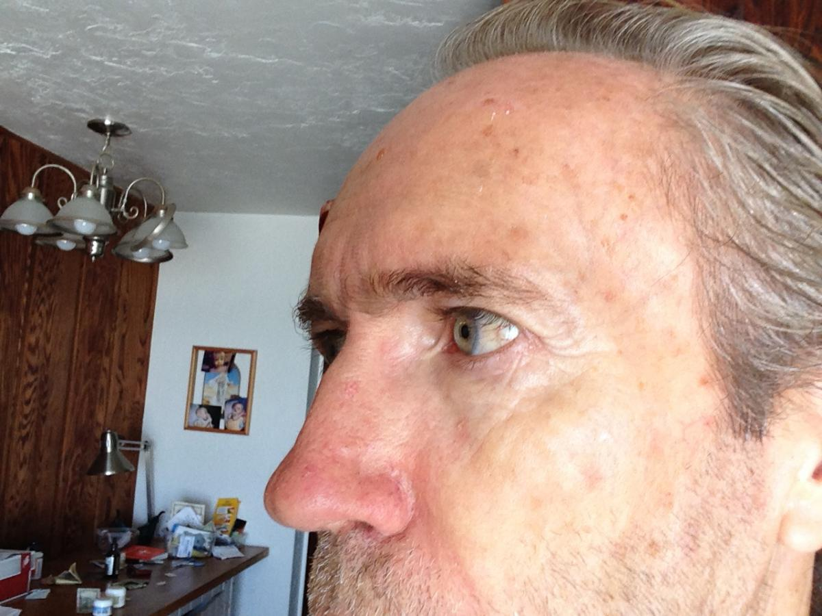 Michael Daughtery Basal Cell Carcinoma after