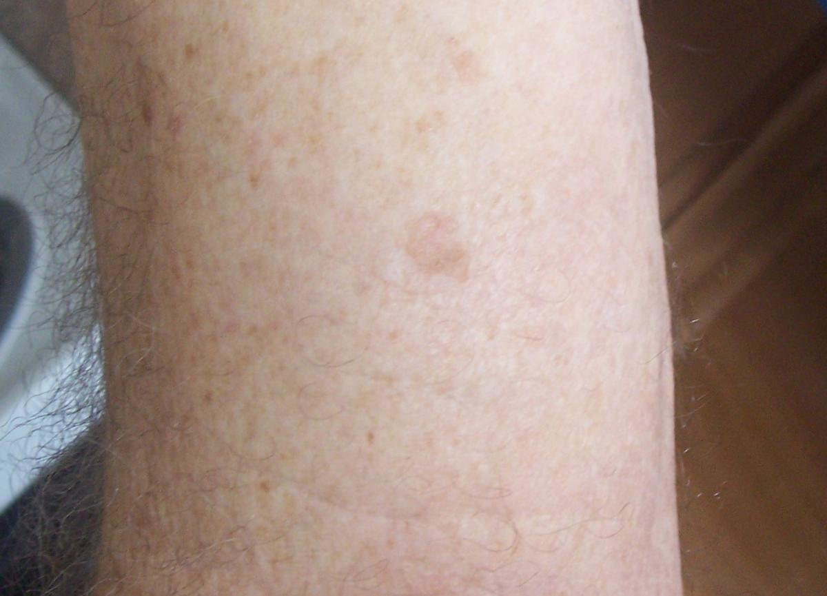 Bob Barron 3rd Picture basal cell carcinoma